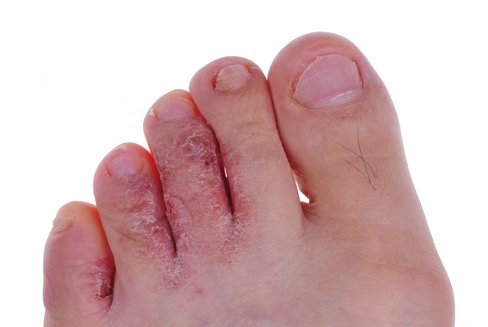 Athlete's Foot Image