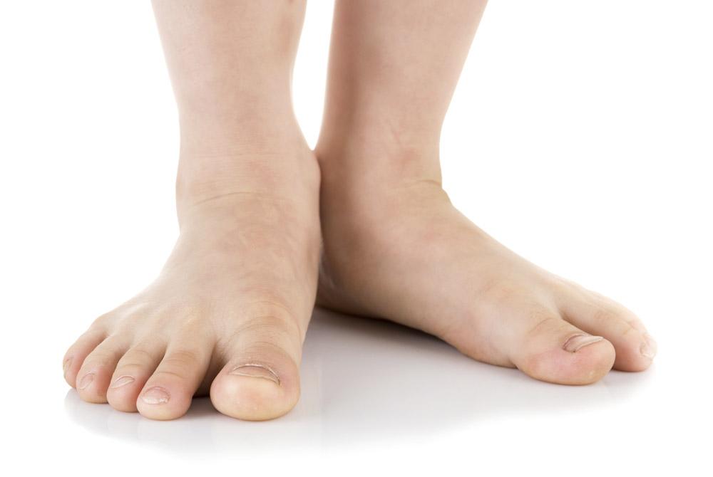 Riccarton Podiatry Christchurch Call For Advice Flat Feet
