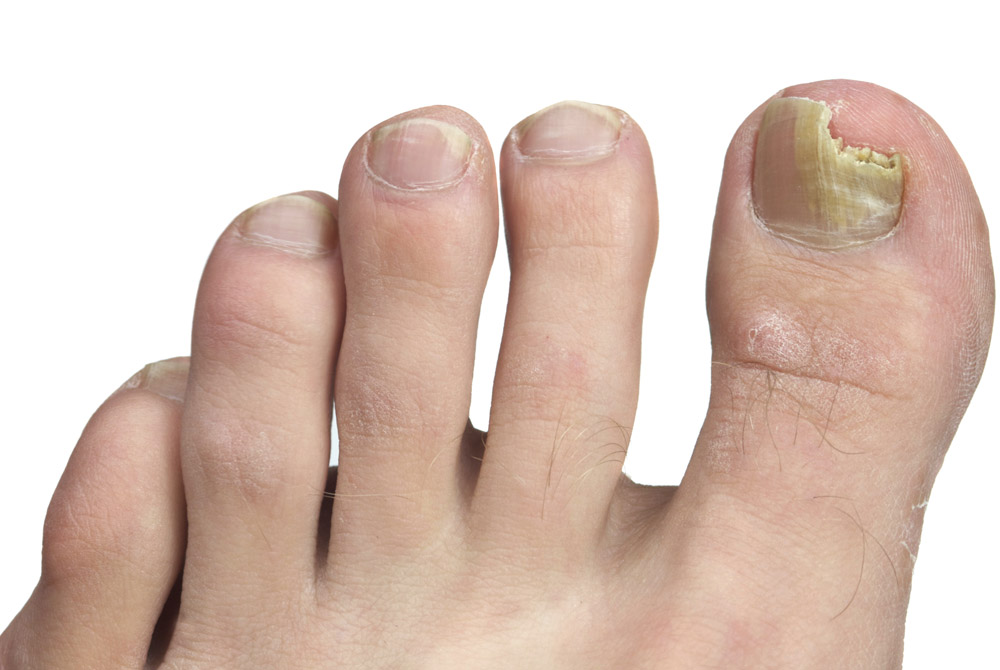 Nail Fungal Infection Image