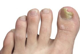 Nail fungal Infection